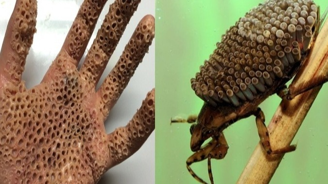 Trypophobia World Most Dangerous Poisonous Insect